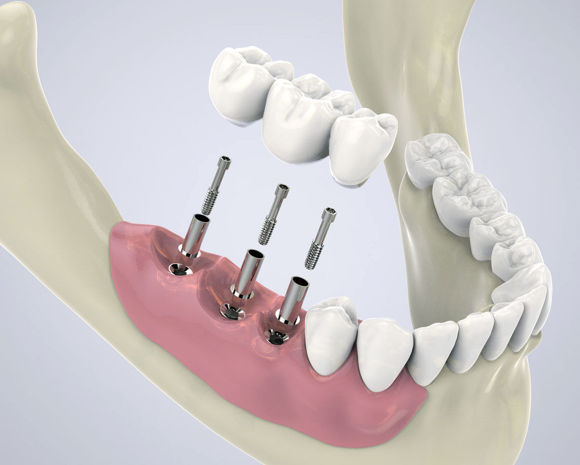 Dental Implants: A Way To Healthier Life